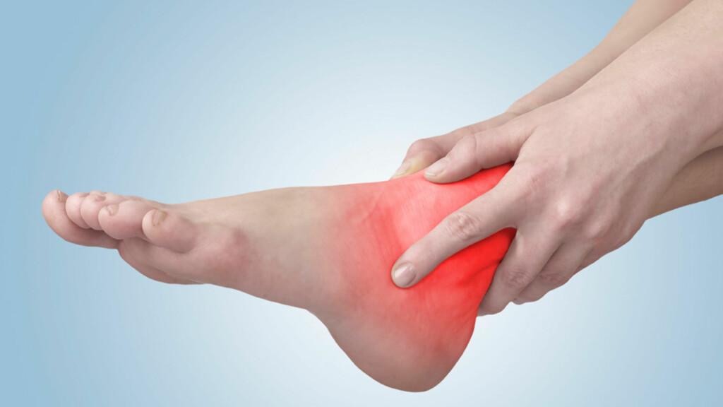 STRESS FRAKTUR: Vanligst i fot eller ankel. Symptomene er gradvis økende smerter lokalisert til et punkt i skjelettet. Foto: NTB Scanpix/Shutterstock
