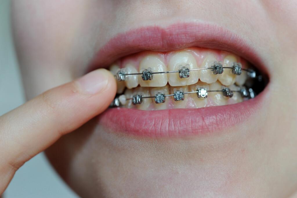 VANLIGST MED FAST TANNREGULERING:  Det er flest barn og unge som henvises til kjeveortoped. Det vanligste er fast tannregulering som blir limt på tennene, for å få tennene til å bevege seg til optimal posisjon.  Foto: NTB scanpix/Frank May
