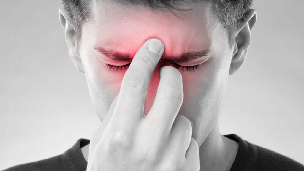 SYMPTOMER PÅ BIHULEBETENNELSE: Smerter i overkjeve eller tenner, i pannen eller bak øynene. Typisk er smertene verst midt på dagen og ved foroverbøyning. Foto: NTB Scanpix/Shutterstock