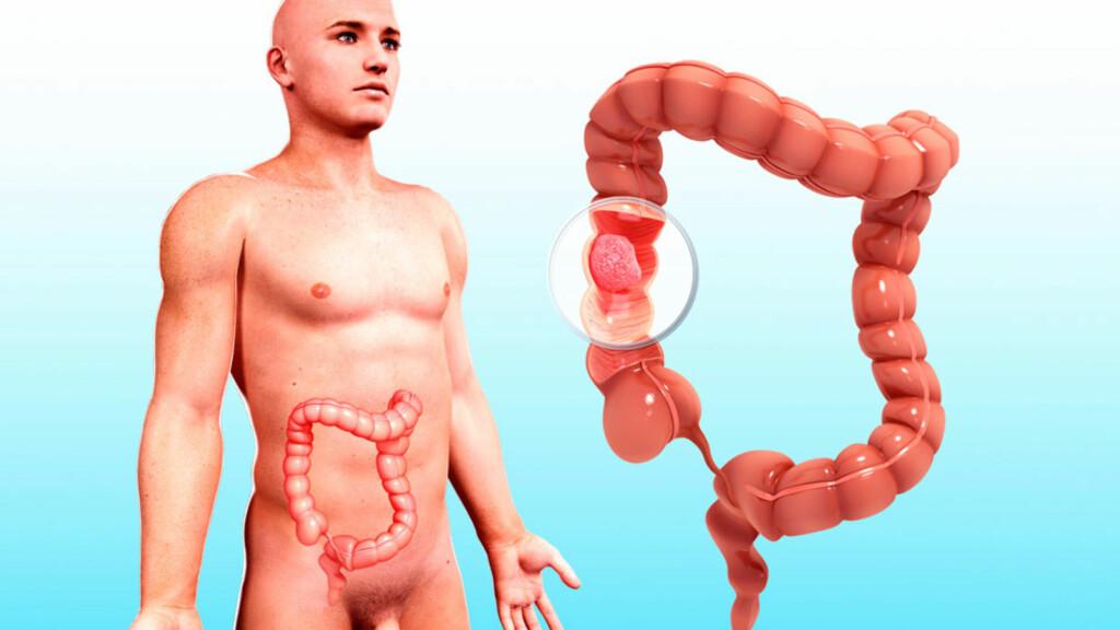 KREFT i TYKKTARM: Kreftsvulster kan oppstå på et eller flere steder i tykktarmen eller endetarmen. Foto: NTB Scanpix / Science Photo Library