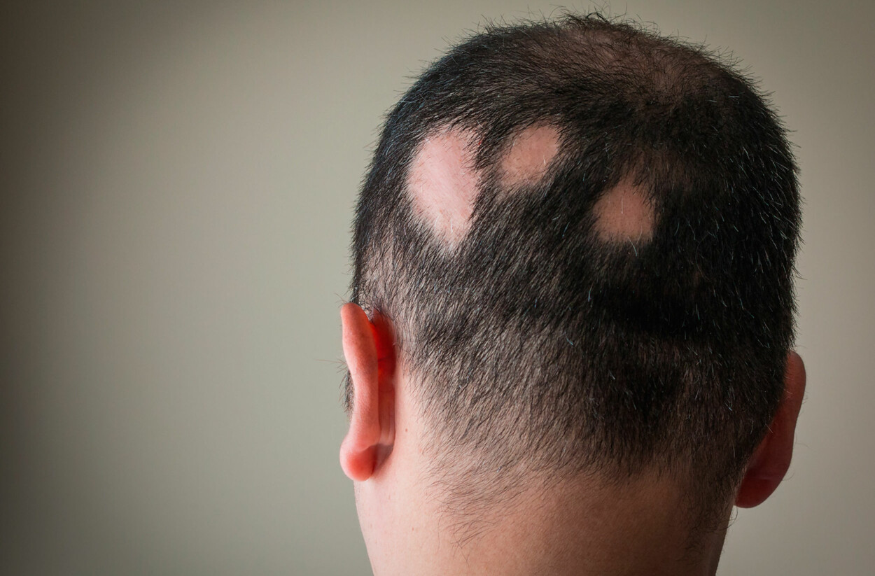 HÅRSYKDOM MED FLEKKVIS HÅRTAP: Alopecia areata er en sykdom som gir flekkvis, eller fullstendig håravfall. Foto: NTB Scanpix/Shutterstock