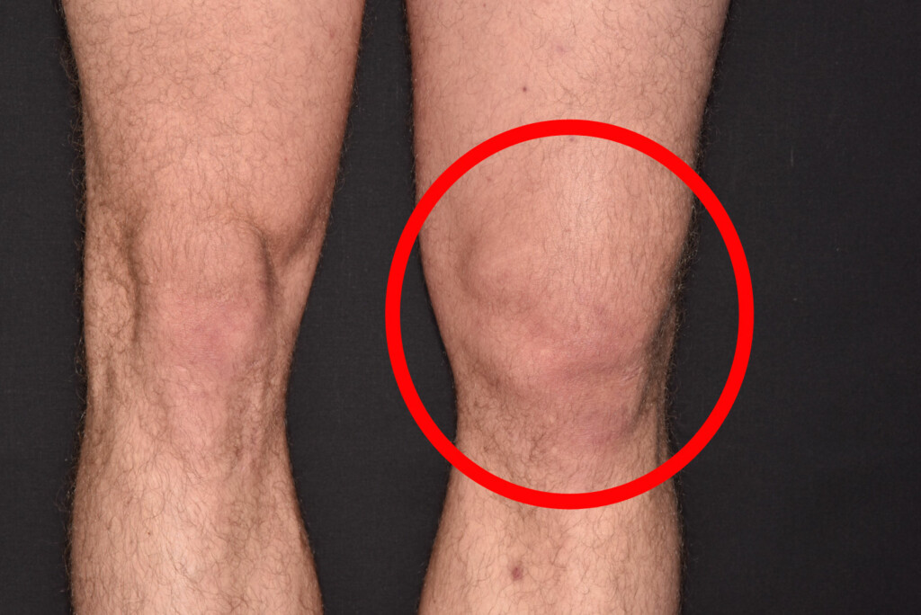 KNE UTE AV LEDD: Bildet viser kneet til en 29 år gammel fotballspiller som fikk kneet ut av ledd etter en skade på fotballbanen. Stor hevelse i kneområdet. Foto: NTB Scanpix/Science Photo Library