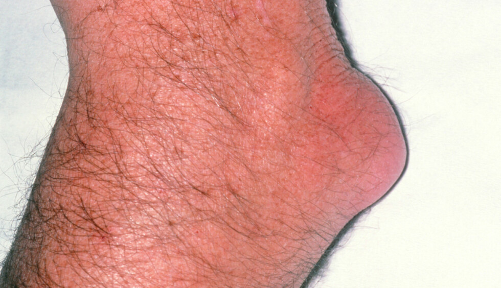 """BURSITT I ALBUE: Kalles også """"Student's Elbow"""". Betent slimpose i albueleddet som gir hevelse. Foto: NTB Scanpix / Science Photo Library"""