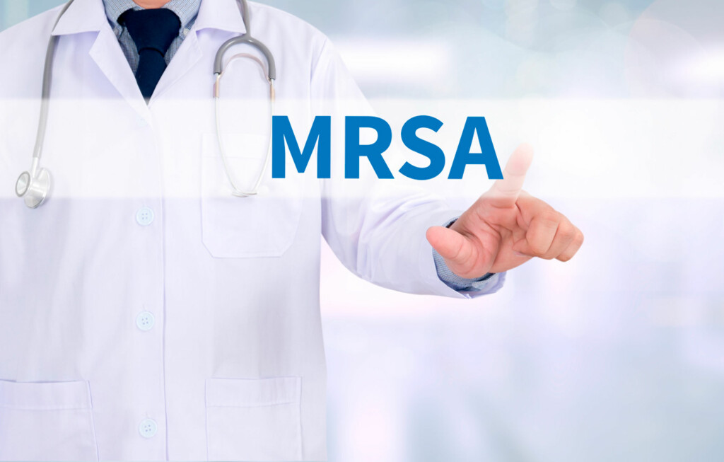 RESISTENTE BAKTERIER: MRSA er gule stafylokokker som har blitt resistente mot en antibiotikatype Foto: NTB Scanpix/Shutterstock