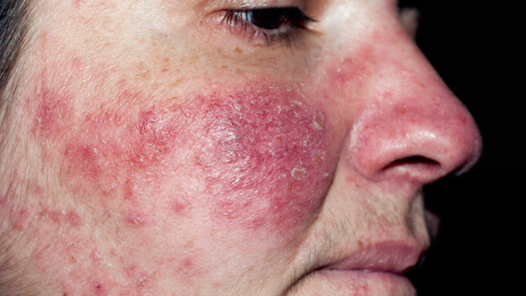 HUDSYKDOMMEN ROSACEA: Symptomene er rødhet i ansiktet, synlige blodkar, rødming og et kviselignende utslett. Foto: NTB Scanpix / Science Photo Library