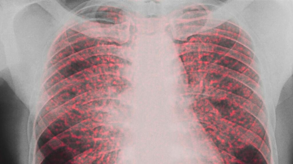 SARKOIDOSE I LUNGENE: Dette er et røntgenbilde av en pasient med sarkoidose, betent lungevev er farget rød. Symptomene forsvinner ofte av seg selv innen to år. Foto: NTB Scanpix / Science Photo Library