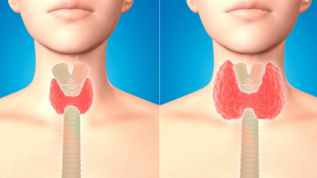 HØYT STOFFSKIFTE: Noen kan få forstørret skjoldbruskkjertel (til høyre) men det er ikke alle som får dette symptomet, selv om man har høyt stoffskifte. Foto: NTB Scanpix/Shutterstock