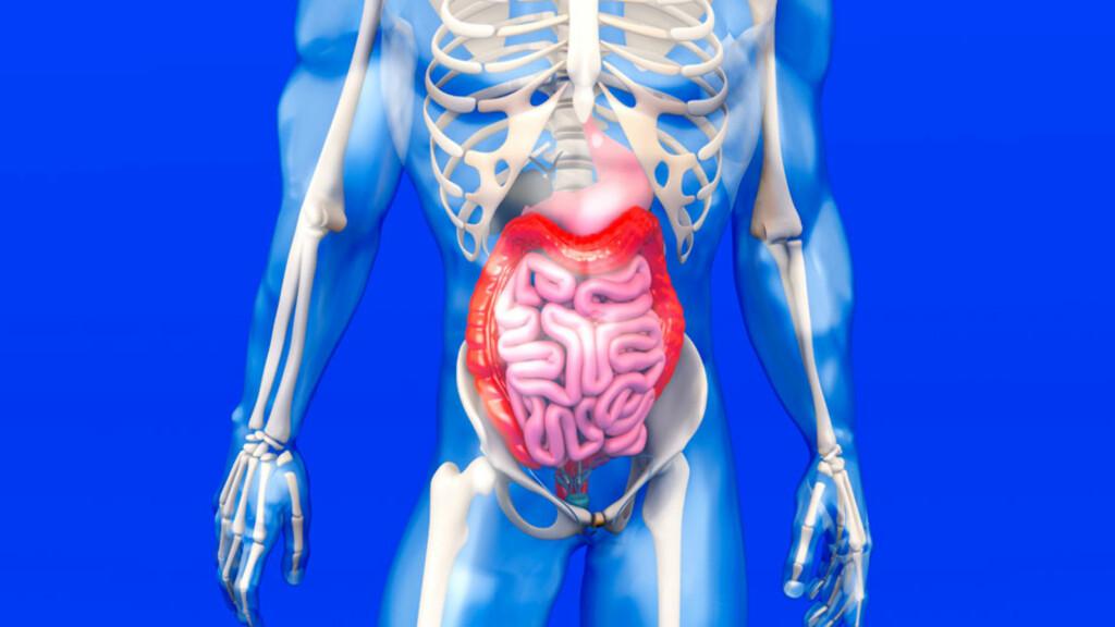 ULCERØS KOLITT: Tykktarmen (tegnet rød) og/eller endetarmen rammes. En betennelse i tykktarmen lager sår. Foto: NTB Scanpix/Shutterstock