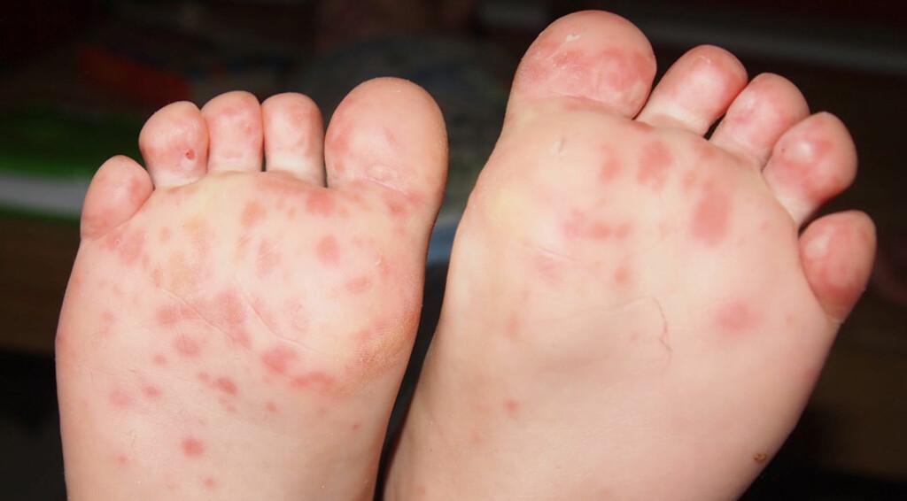 HÅND, FOT OG MUNNSYKDOM: Utslettet med blemmer dukker først opp i munn, deretter på hender. En del får også blemmer på føttene, slik du ser på bildet. Foto: NTB Scanpix/Shutterstock