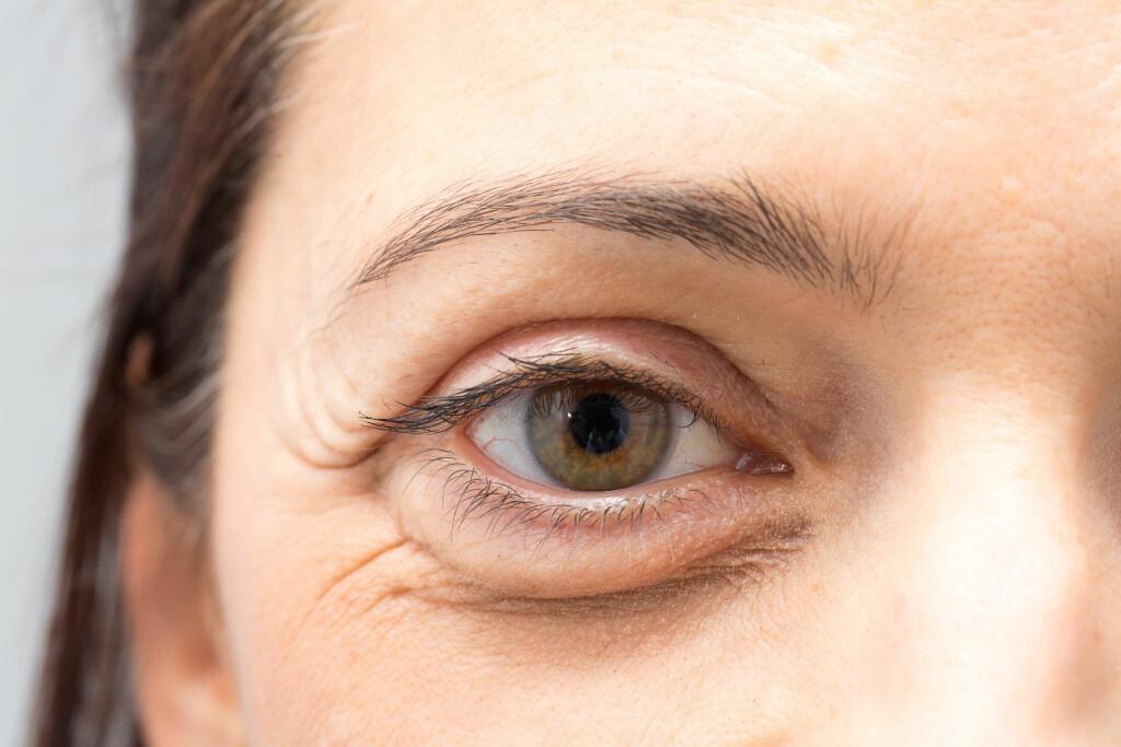 TRENGER INGEN BEHANDLING: Poser under øynene er vanligvis et kosmetisk problem, og trenger i seg selv ingen behandling. Foto: Shutterstock