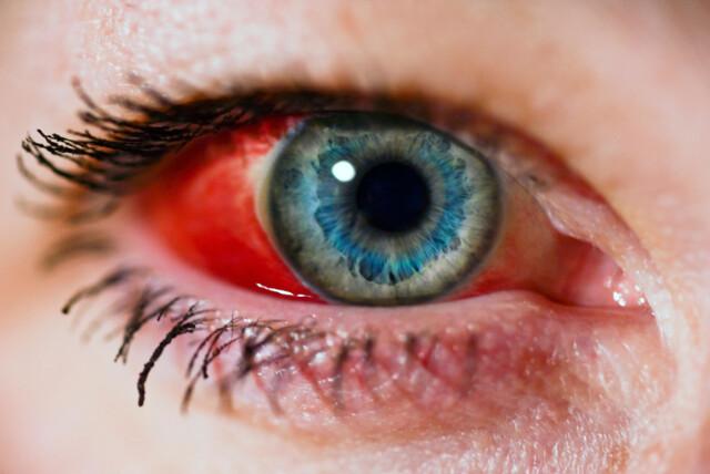 Sprengt Blodkar I Øyet