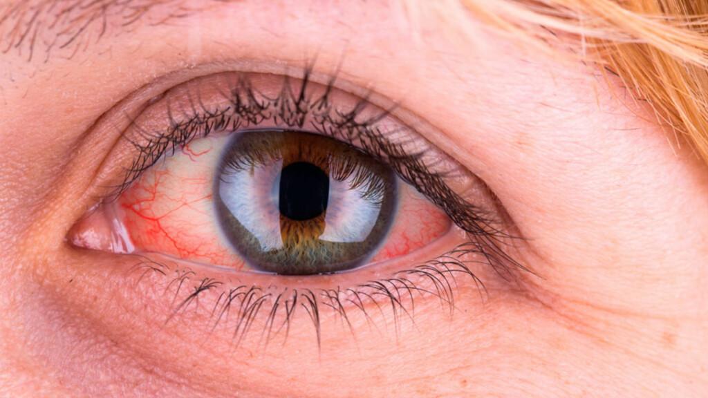 HVORFOR BLIR ØYET RØDT: Utvidede blodårer er det som gir rødfargen. Dette kan ha flere årsaker. Foto: NTB Scanpix/Shutterstock