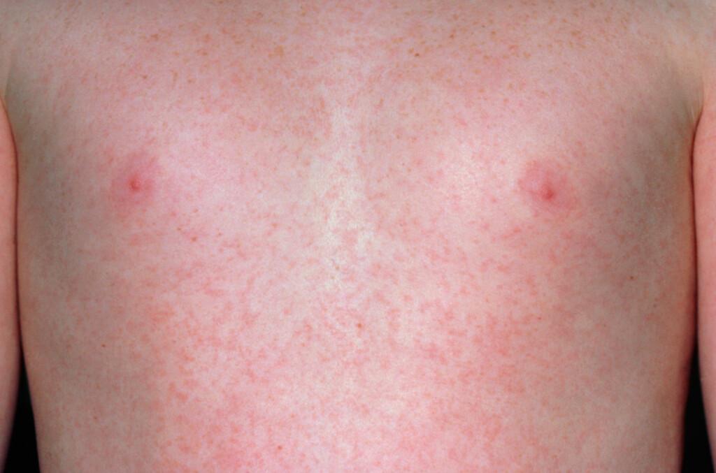 UTSLETT VED RØDE HUNDER:  Etter hvert som utslettet brer seg utover på kroppen, blir prikkene som kom først til syne blekere.  Foto: NTB Scanpix / Science Photo Library