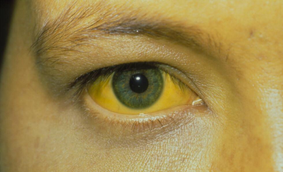 GULSOTT: Gulskjær i huden og på det hvite i øynene er tegn på leversykdom. Foto: Science Photo Library