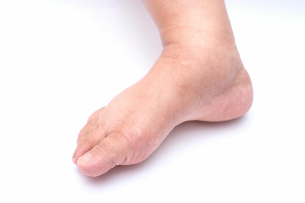 Ødem: Et ødem kan for eksempel gi hovne bein. Foto: NTB Scanpix