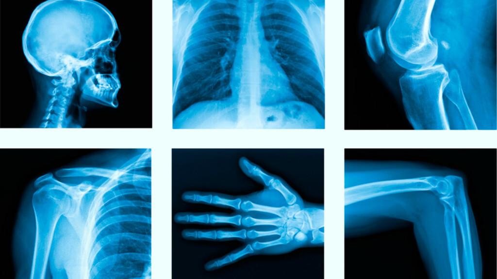 RØNTGENUNDERSØKELSE: Det som oftest undersøkes med vanlig røntgen er lungene, hjertet og skjelettet Foto: NTB Scanpix/Shutterstock