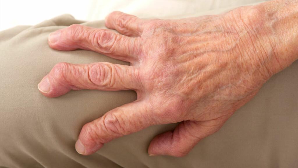 LEDDGIKT: Vonde, varme, hovne og stive ledd er symptomer ved revmatoid artritt. Hender, håndledd og føtter og knær er ofte rammet. Foto: NTB Scanpix / Science Photo Library