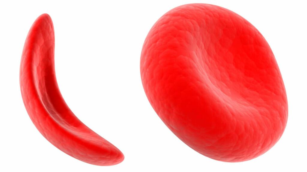 SIGDCELLEANEMI: De røde blodcellene er normalt runde (høyre), men ved sigdcelleanemi er blodcellene sigdformet (venstre) Dette er medfødt. Foto: NTB Scanpix/Shutterstock
