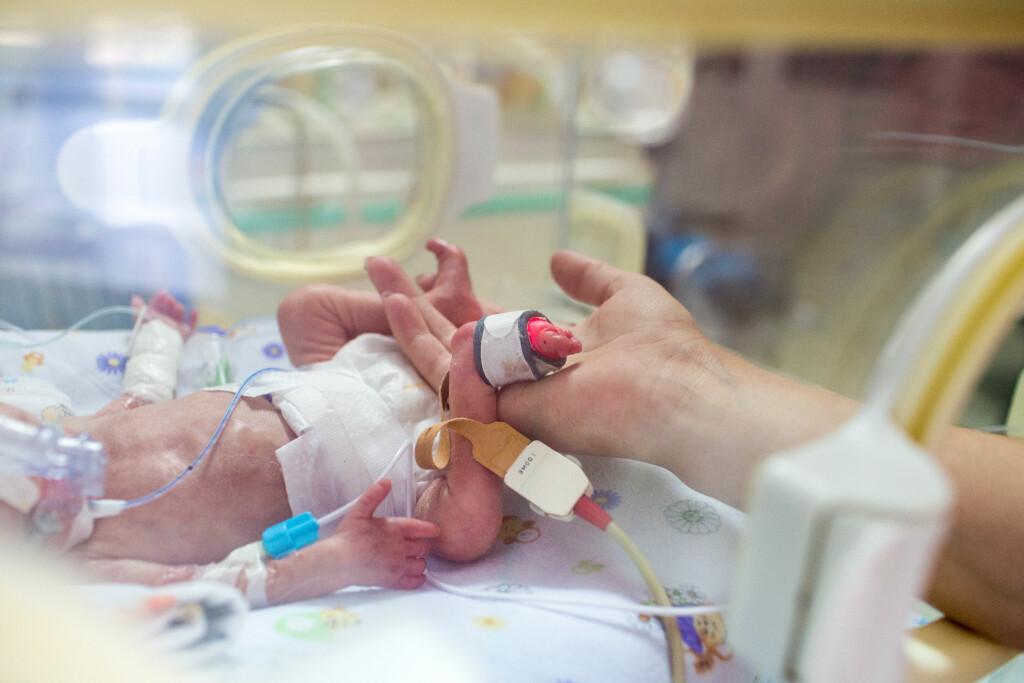 PREMATUR: Barn som blir født før den 37. svangerskapsuke er per definisjon født som prematur. Foto: Shutterstock/NTB scanpix