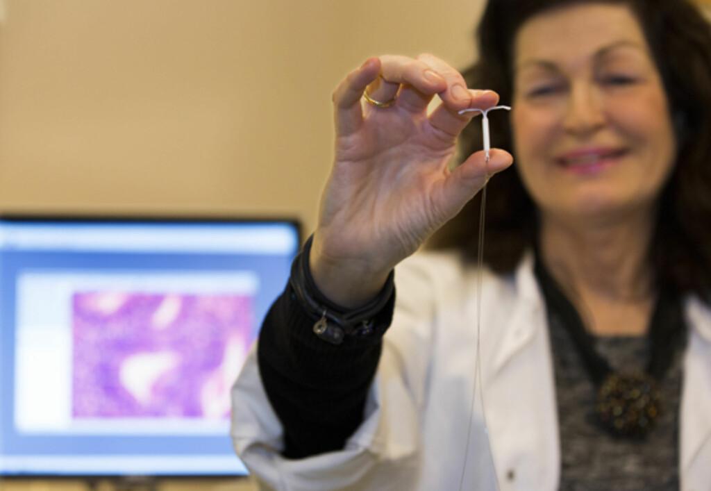 PROFESSOR ANNE ØRBO: Har sammen med forskerteamet i Tromsø påvist at hormonspiral stopper forstadiet til livmorkreft.  Foto: Foto: UiT, Norges Arktiske Universitet