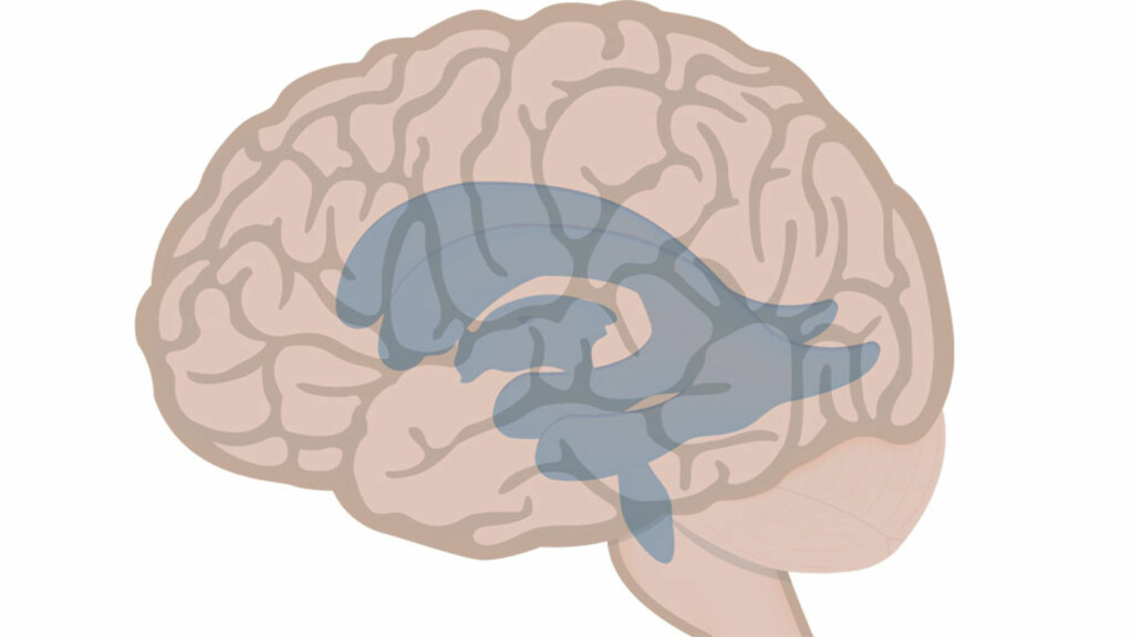 VANNHODE: Vannhode oppstår når hulrommene i hjernen fylles med for mye hjernevæske. Foto: NTB Scanpix/Shutterstock