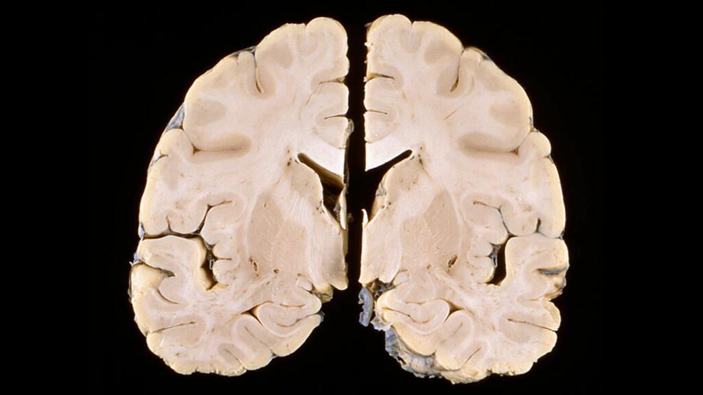 HJERNEBETENNELSE: Snittbilde av hjerne som viser strukturelle forandringer etter en hjernebetennelse. Foto: NTB Scanpix / Science Photo Library