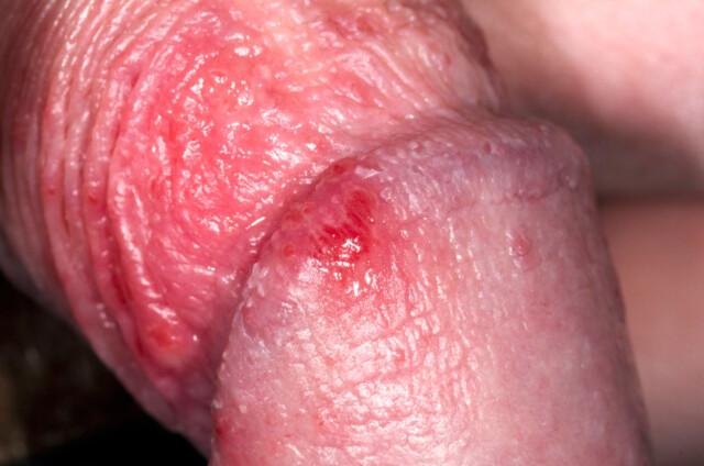 Knopper penis røde på Røde knopper