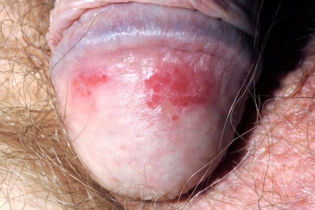 Knopper penis røde på Penissopp