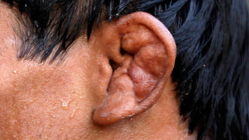 BLOMKÅLØRER: Øret er såbart for ytre påvirkninger som trykkskade og kuldeskade. Bruskhinnen i øret kan bli betent og gi opphav til såkalte blomkålører.  Foto: AFP/NTB SCANPIX