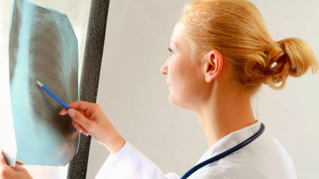 RØNTGENBILDE: Et røntgenbilde kan som regel bekrefte scheuermanns sykdom. Foto: NTB Scanpix/Shutterstock