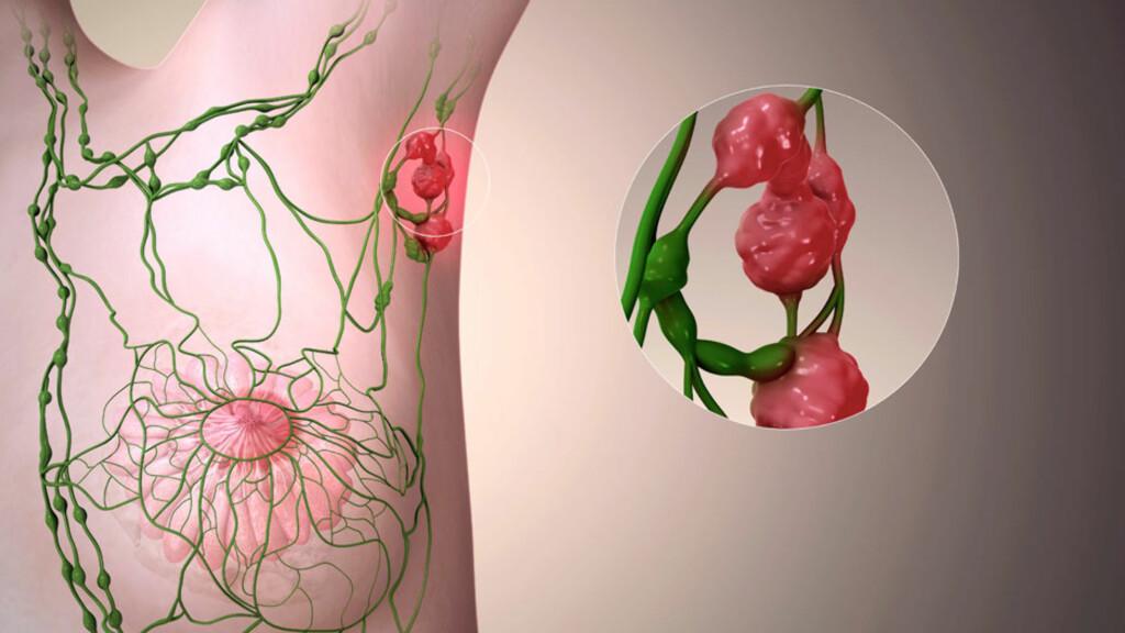 LYMFEKREFT: Illustrasjon av lymfeårer (grønne) og en betent lymfeknute (rød) med kreftceller  i armhulen (vist som innfelt). Ved lymfekreft endrer normale lymfeceller seg til kreftceller. Foto: NTB Scanpix / Science Photo Library