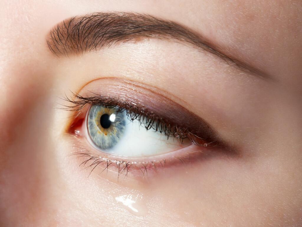 Rennende øyne: Rennende øyne er ofte helt ufarlig. Foto: NTB Scanpix