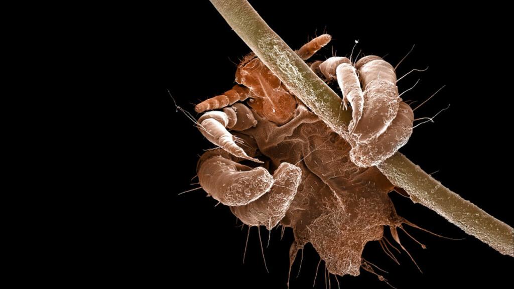 FLATLUS I MIKROSKOP: Flatlusa er bred og har samme formen som en krabbe. Den gir kløe som symptom. Foto: NTB Scanpix / Science Photo Library