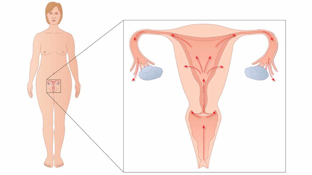 BEKKENINFEKSJON: Bekkeninfeksjon betyr infeksjon i livmor og/eller eggledere, eggstokker og i området rundt. Foto: NTB Scanpix / Science Photo Library