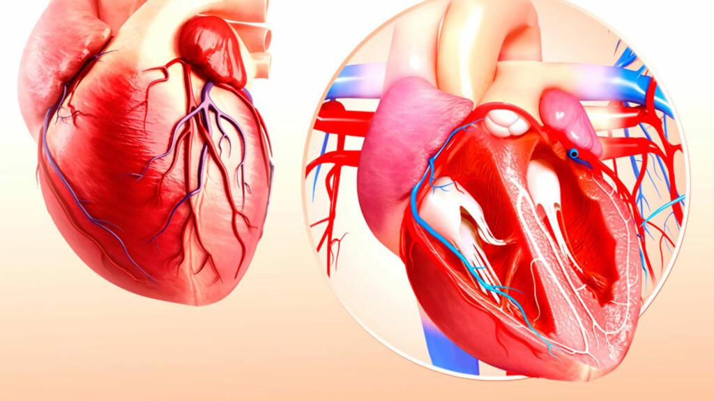 ENDOKARDITT: Betennelse i hjerteposens indre hinner (endokard)  Foto: NTB Scanpix / Science Photo Library
