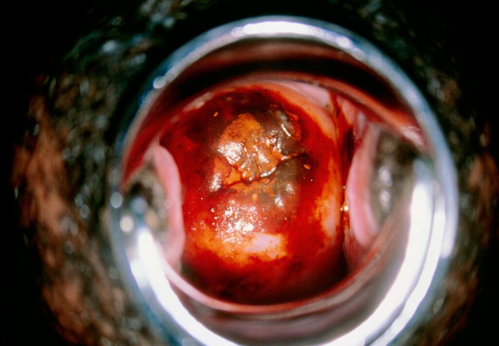 CELLEFORANDRING: Kolopskopi viser bilde av cervix (midten) farget med jod for å oppdage unormale celler. Svart farge i senter kan indikere mulig dysplasi. Foto: NTB Scanpix / Science Photo Library