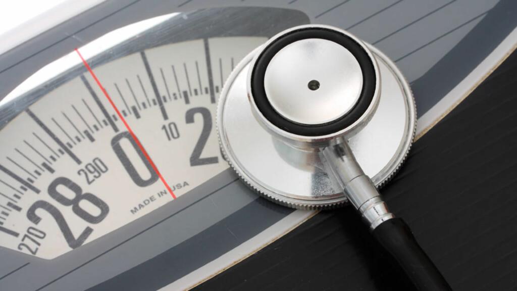 FEDMEOPERASJON: En rekke faktorer avgjør om du er egnet for en slankeoperasjon, deriblant BMI. Foto: NTB Scanpix/Shutterstock