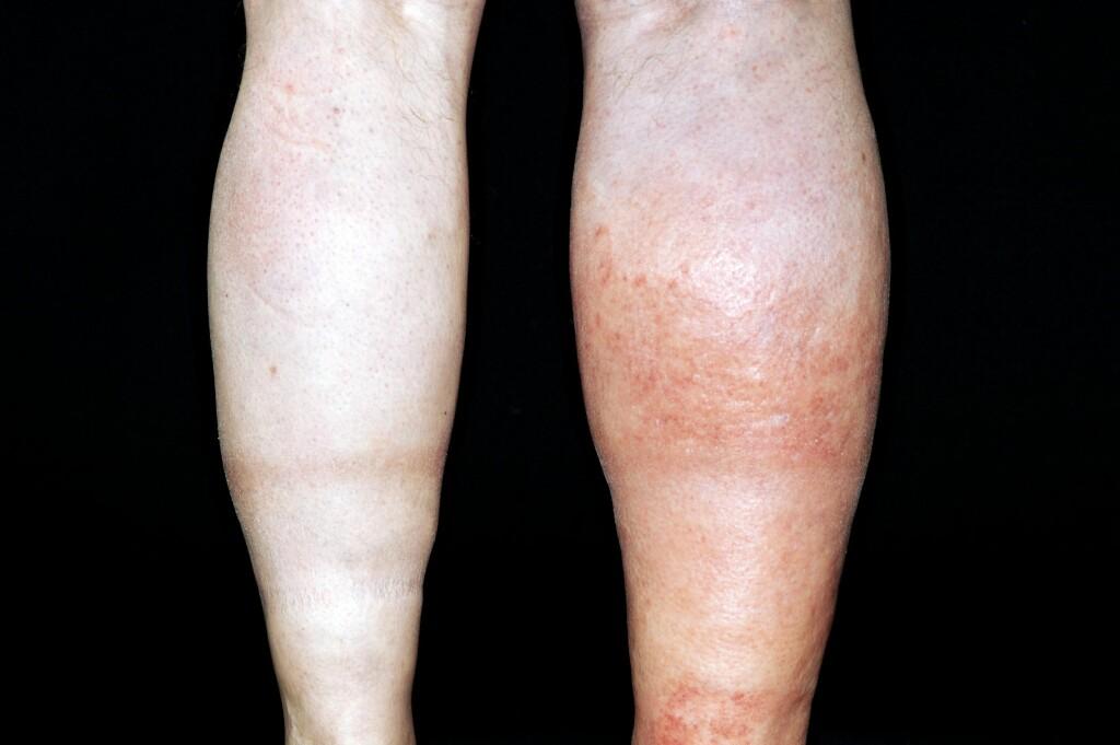 BLODPROPP I BENA: Dyp venetrombose (blodpropp)  kan oppstå i bena eller armene . Smerte og hevelse i ett ben eller én arm kan være et tegn på blodpropp. Hudfargen kan endre seg til blek, rød ell Foto: Science Photo Library