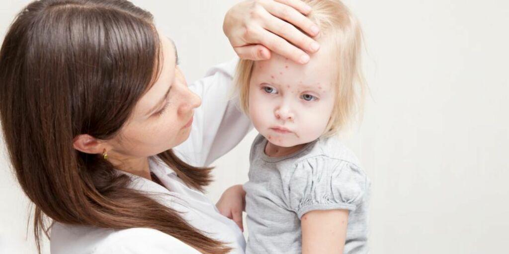 image: De vanligste barnesykdommene