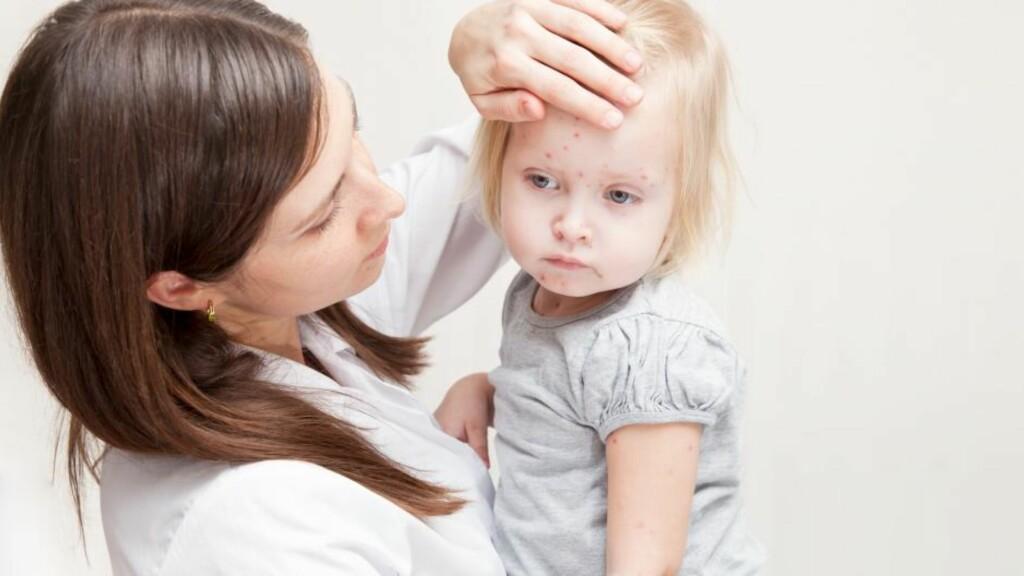 BARNESYKDOMMER: Feber og utslett er symptomer som er tilstede blant flere av sykdommene. Foto: NTB