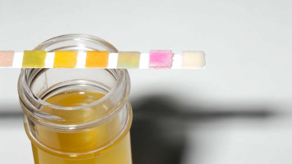 URINPRØVE: Legen bruker en urinstix for å teste om barnet har urinveisinfeksjon.