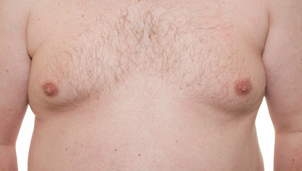 OPPSØK LEGE VED BRYSTENDRINGER: Skyldes mannebryst sykdom eller overvekt? Eller noe annet? Det er mulig å få behandling. Foto: Shutterstock