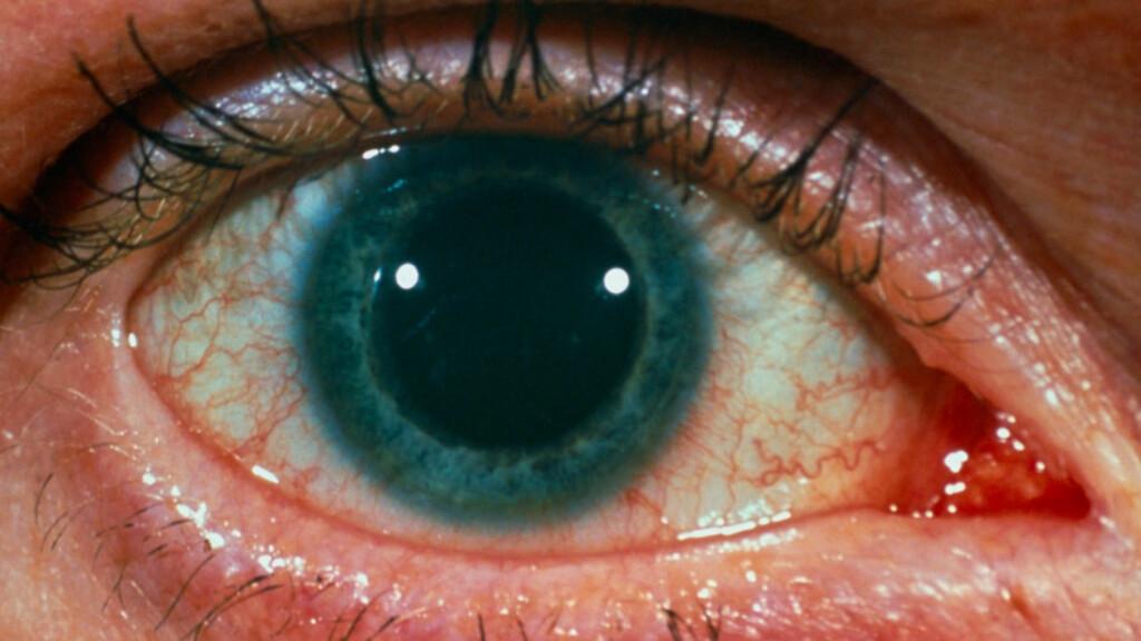 TEGN PÅ MISBRUK AV NARKOTIKA: Pupillen er forstørret og øyne kan bli generelt røde og blodsprengte ved hasjbruk.  Foto: NTB Scanpix / Science Photo Library