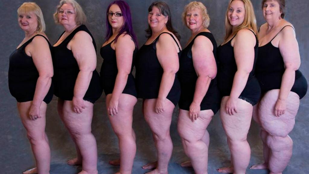 LIPØDEM: «Pæreform» er ikke alltid tegn på overvekt eller fedme. Disse australske kvinnene har diagnosen lipødem og ønsker at flere skal ha kunnskap om sykdommen.  Foto: Judy Hudson / Lipoedema Australia