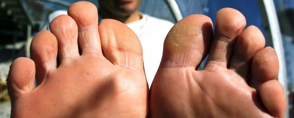 TINEA PEDIS: Fotsopp er svært vanlig, spesielt blant idrettsutøvere. I tillegg smitter det lett.  Foto: Scanpix