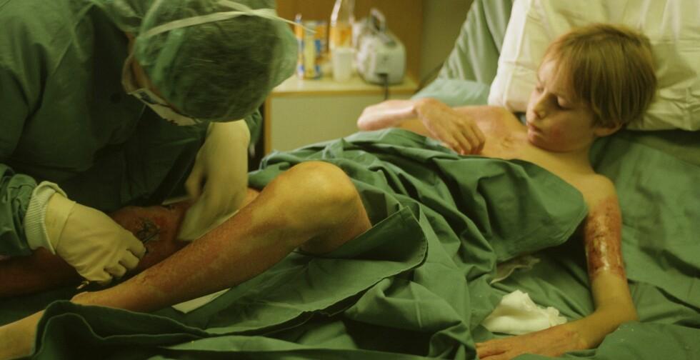 Brannskadet gutt  på Haukeland sykehus Foto: SCANPIX