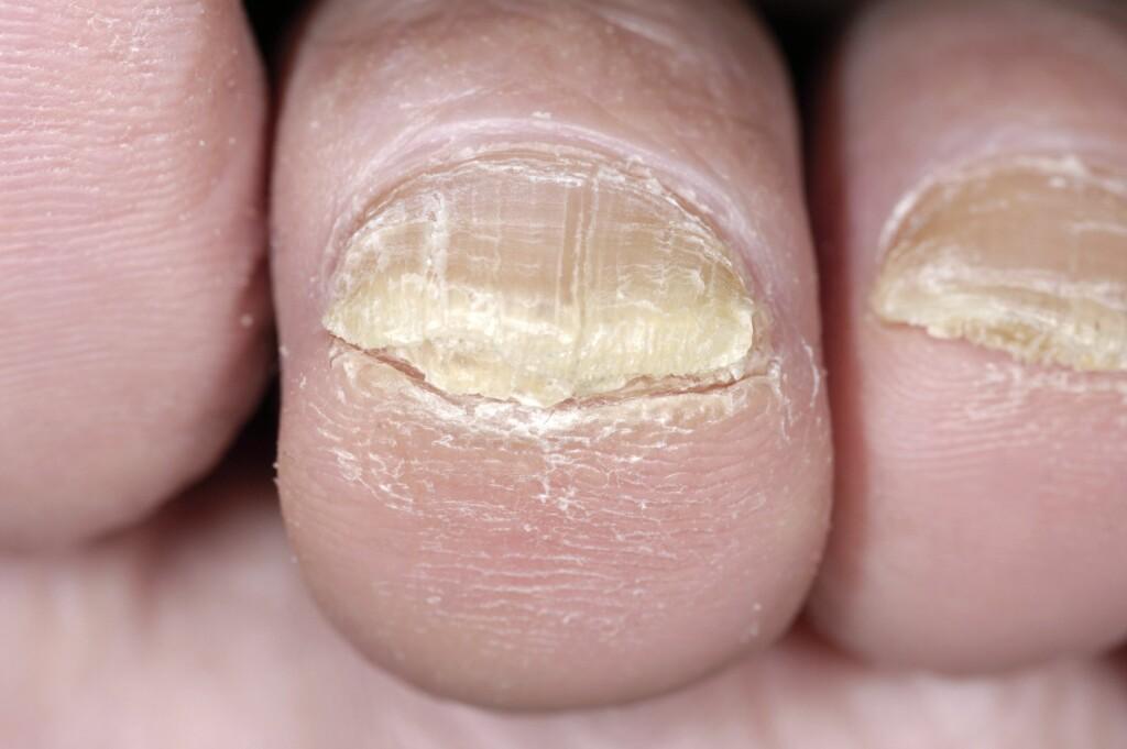 IKKE FARLIG: Neglesopp behandles som oftest med soppdrepende tabletter Foto: NTB Scanpix