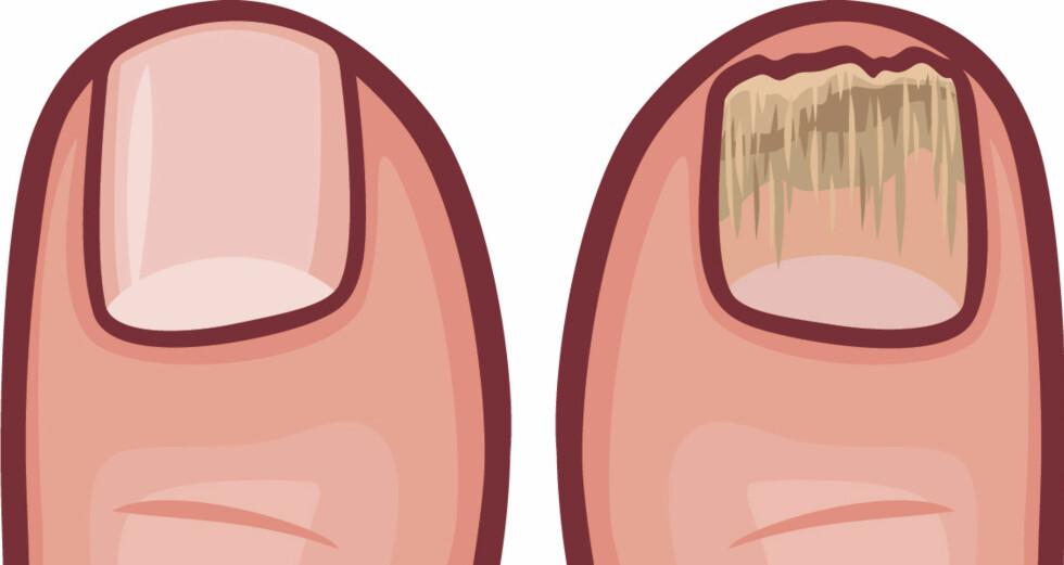 NEGLESYKDOMMER: Forandringer i neglen kan være et tegn på sykdom Foto: NTB Scanpix/Shutterstock