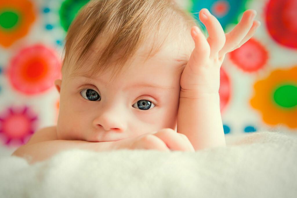 DOWNS: Downs syndrom fører til en forsinket mental utvikling, samt en rekke feil i utviklingen av mange organer. Foto: NTB Scanpix/Shutterstock