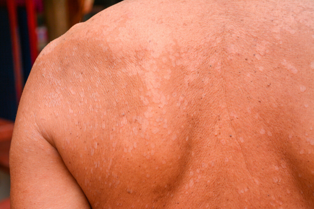LYSE FLEKKER: En gjærsopp i huden lager flekker som er lyse (som her) eller mørkere enn resten av huden. Foto: NTB Scanpix/Shutterstock